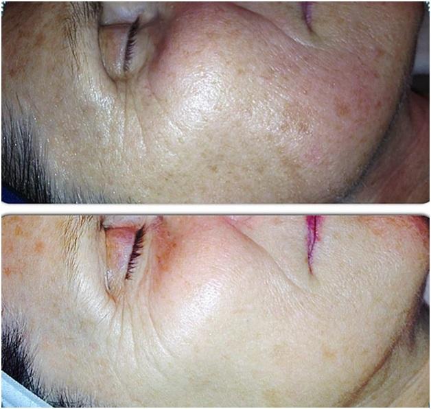 Laser Treatment comparision